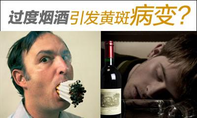 熬夜抽烟酗酒都会潜在黄斑病变的危险