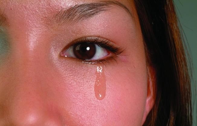 总是流泪怎么办,要治疗吗